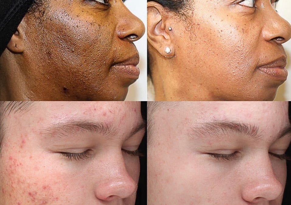 TDC is now offering the VI Chemical Peel